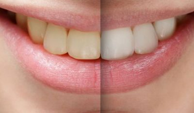 Simple facts about tooth whitening